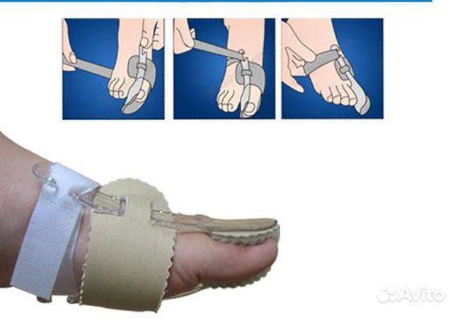 Косточка выпирает на ноге лечение