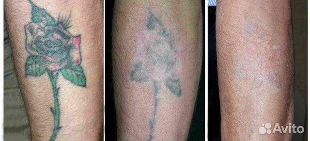 Почему не стоит делать татуировку?